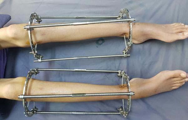 phẫu thuật kéo dài chân