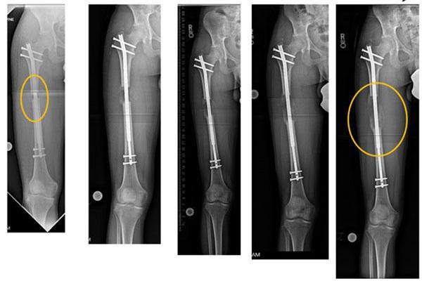 Phẫu thuật kéo dài xương để tăng chiều cao