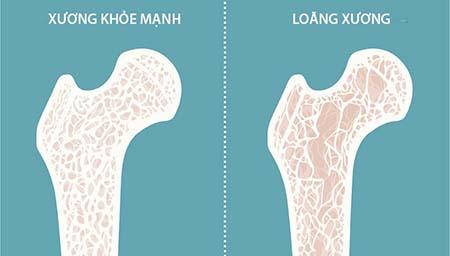 mối liên hệ của canxi và bệnh loãng xương